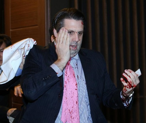 US ambassador to South Korea Mark Lippert covers a wound to his face after being attacked in Seoul AFP Photo)